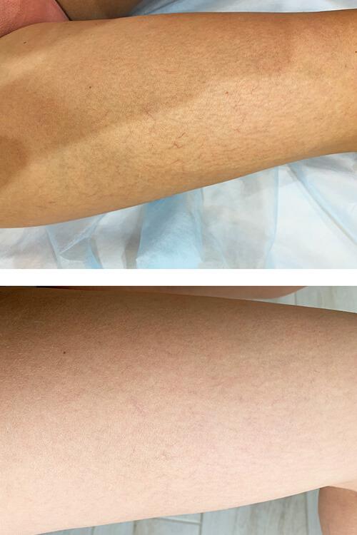 kapilyarnye setki na nogah - Удаление капиллярной сетки на ногах