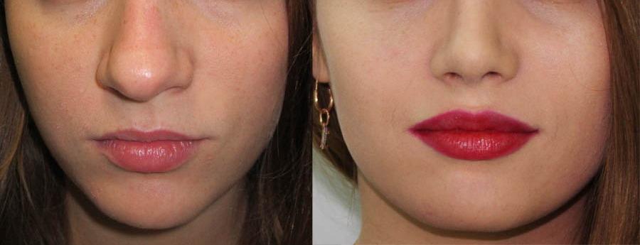 korrekciya formy konchika nosa 1 - Коррекция кончика носа