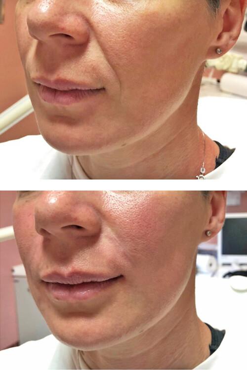 Заполнение носогубных складок, коррекция средней трети лица