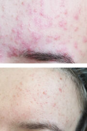 lechenie akne 180x270 - Лечение акне
