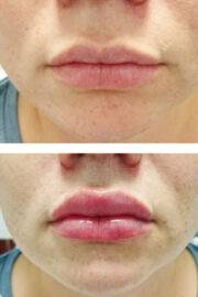 uvelichenie gub 180x270 - Увеличение губ