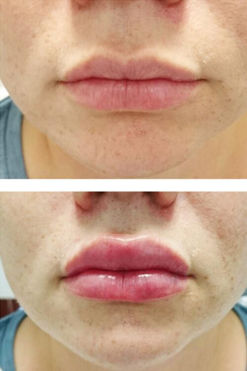 uvelichenie gub - Увеличение губ