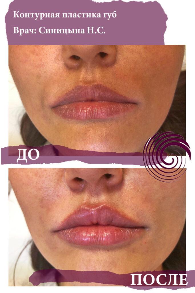 fillery guby 1 683x1024 - Увеличение губ