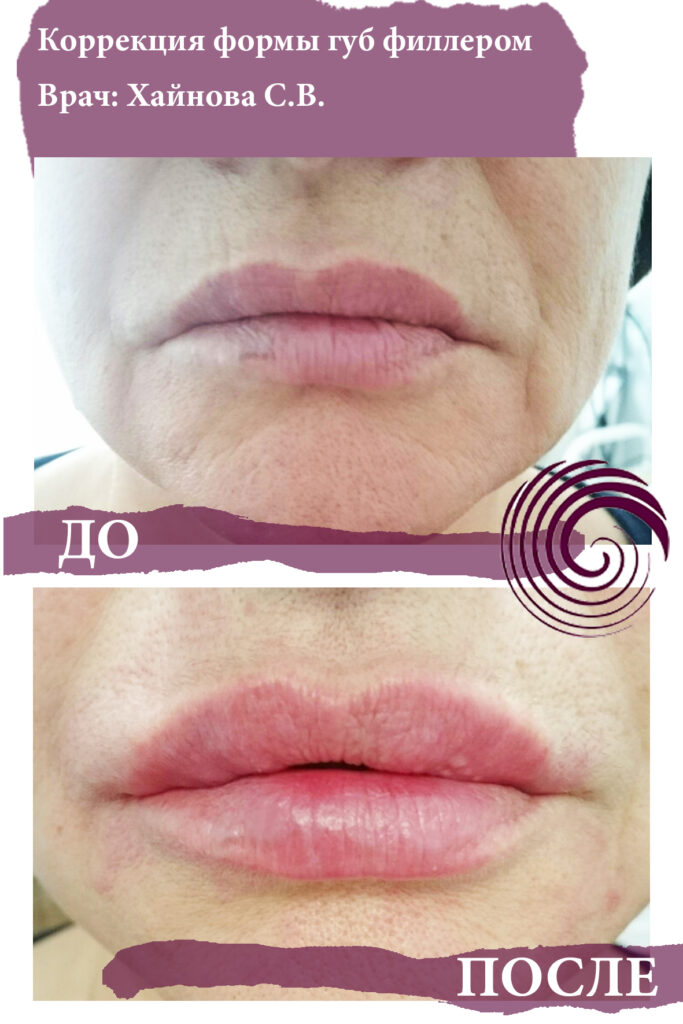 fillery guby 10 683x1024 - Увеличение губ