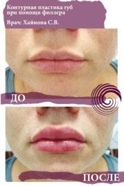 fillery guby 11 180x270 - Увеличение губ