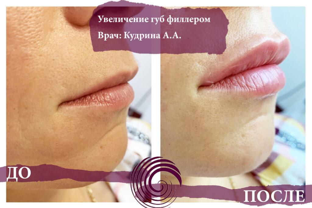 fillery guby 2 1024x682 - Увеличение губ
