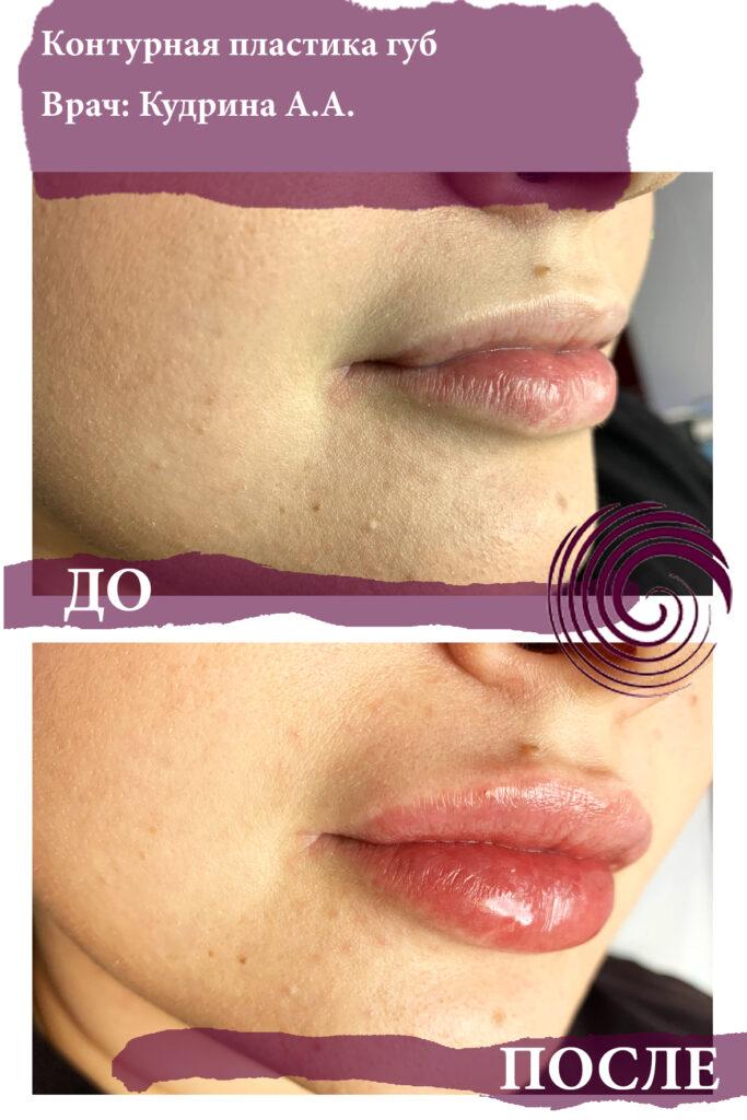 fillery guby 3 683x1024 - Увеличение губ