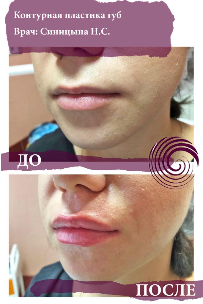 fillery guby 4 683x1024 - Увеличение губ