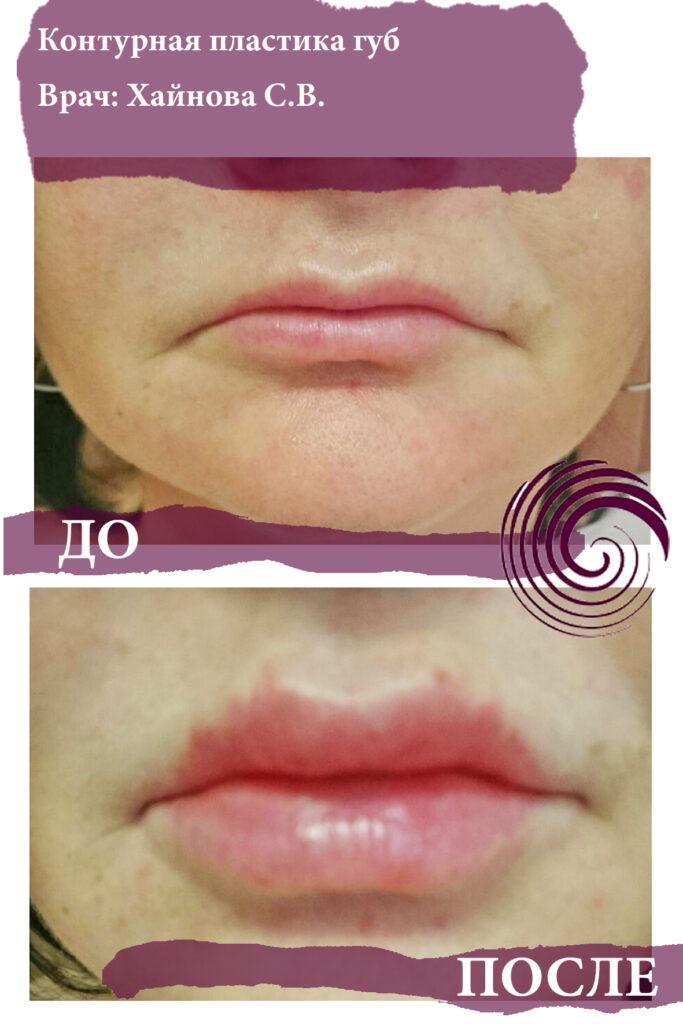 fillery guby 5 683x1024 - Увеличение губ