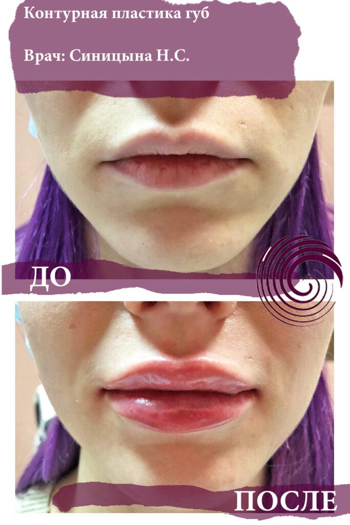 fillery guby 6 683x1024 - Увеличение губ