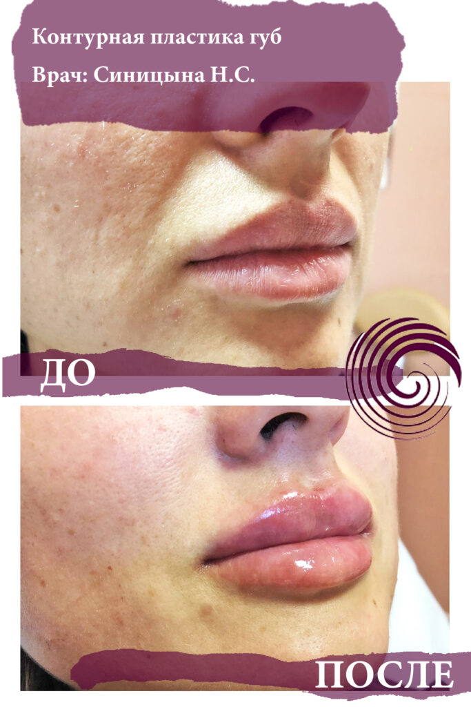 fillery guby 7 683x1024 - Увеличение губ