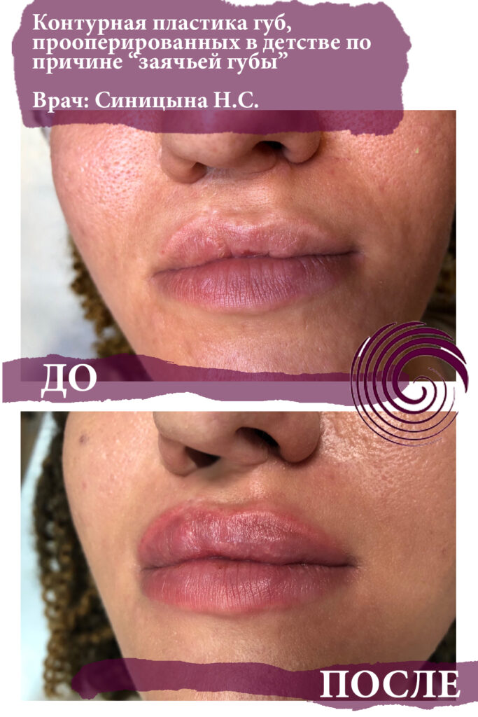 fillery guby 8 683x1024 - Увеличение губ