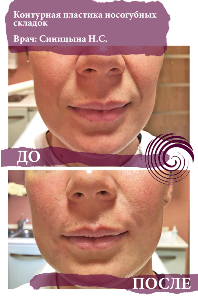 fillery nosogubka 1 683x1024 - Заполнение носогубных складок, коррекция средней трети лица