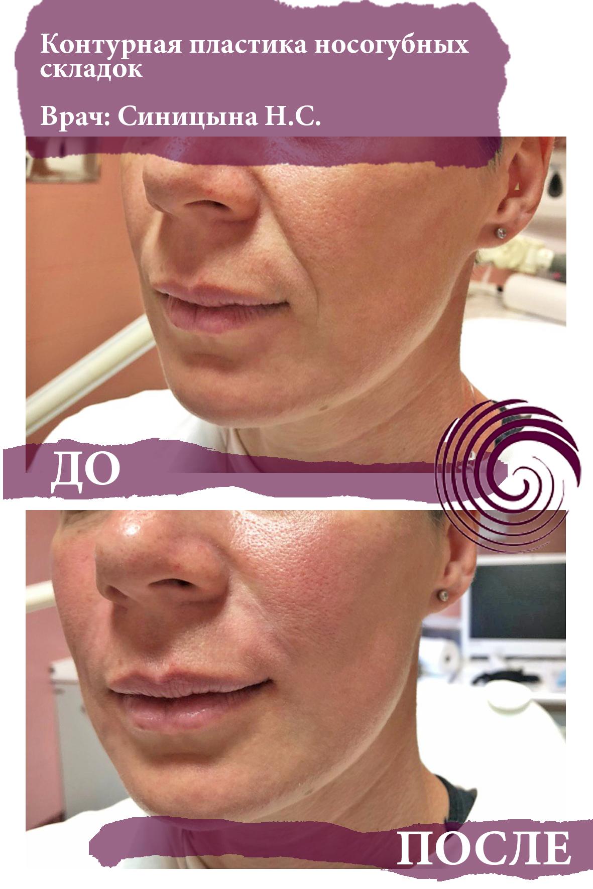 fillery nosogubka 2 - Заполнение носогубных складок, коррекция средней трети лица