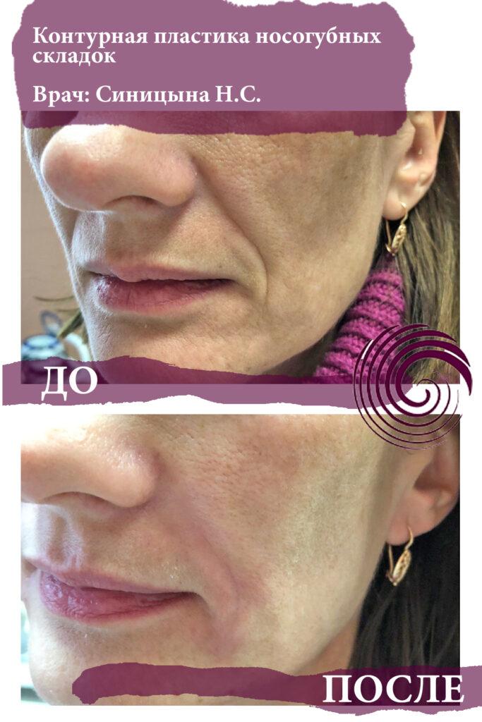 fillery nosogubka 3 683x1024 - Заполнение носогубных складок, коррекция средней трети лица