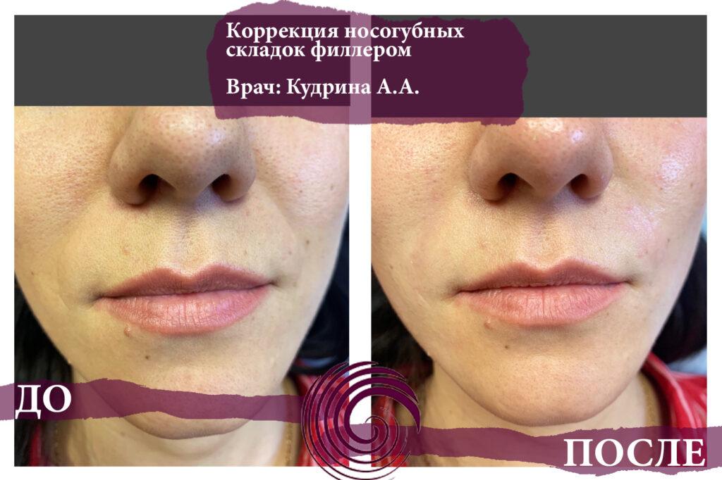 fillery nosogubka 4 1024x682 - Заполнение носогубных складок, коррекция средней трети лица