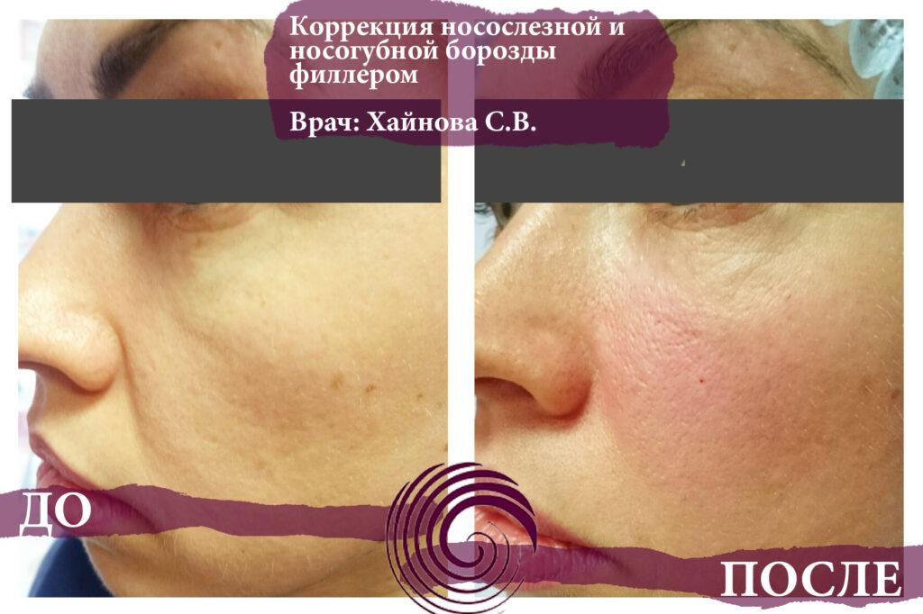 fillery nososlezka 4 1024x682 - Коррекция носослезной борозды филлерами