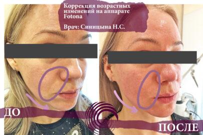 fotona 1 405x270 - Лазерное омоложение шеи на аппарате Fotona 4D