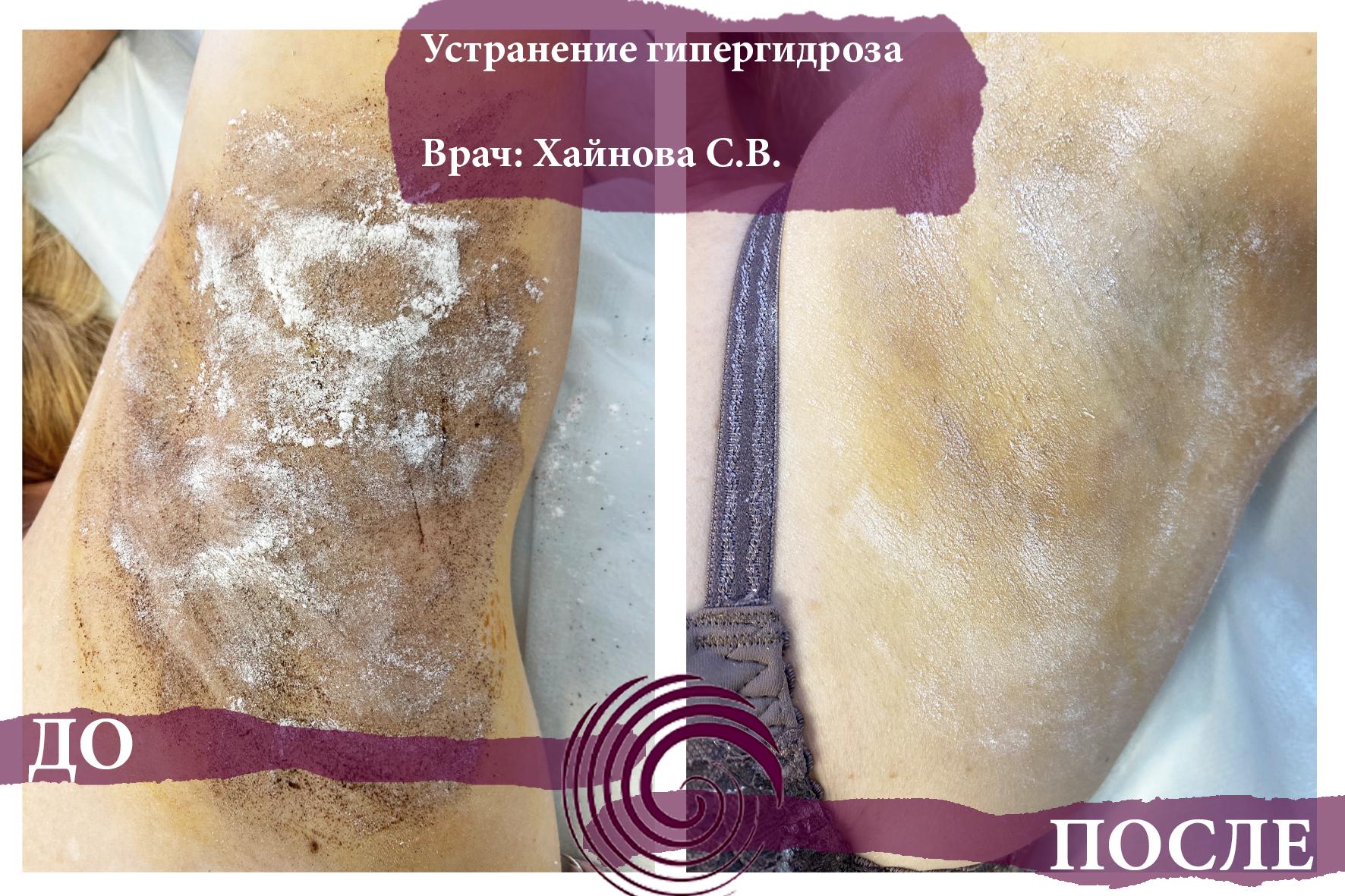 gipergidroz 2 - Ботулотоксин