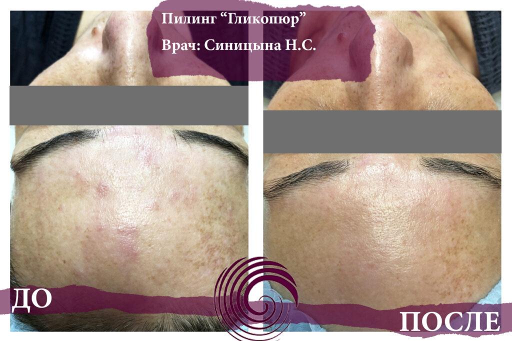 glikopyur 3 1024x682 - Лечение проблемной кожи