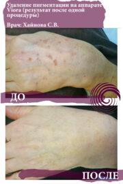 pigmentatsiya 1 180x270 - Удаление гиперпигментации на аппарате Viora