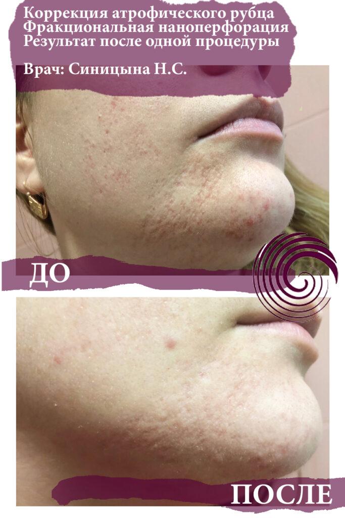 rf lifting 2 683x1024 - Лечение проблемной кожи