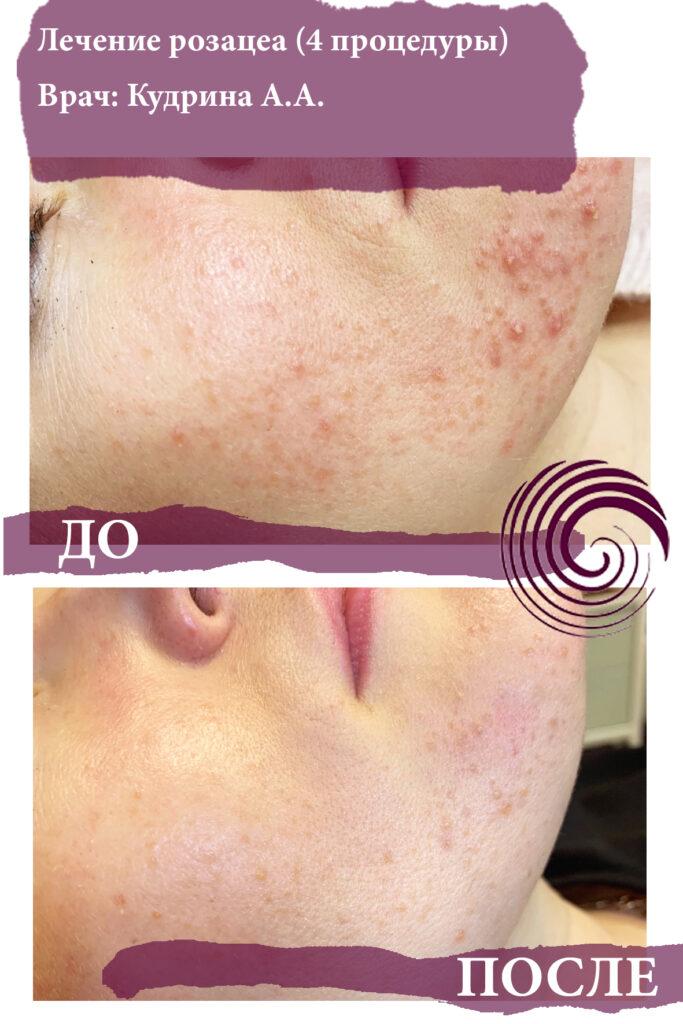 rozatsea 1 683x1024 - Лечение проблемной кожи