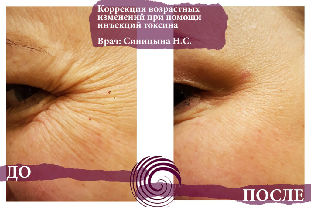 toksin 7 1024x682 - Инъекционная терапия токсином