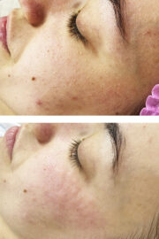 chistka lica 180x270 - Чистка лица