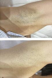 epilyaciya 180x270 - Эпиляция подмышечных впадин