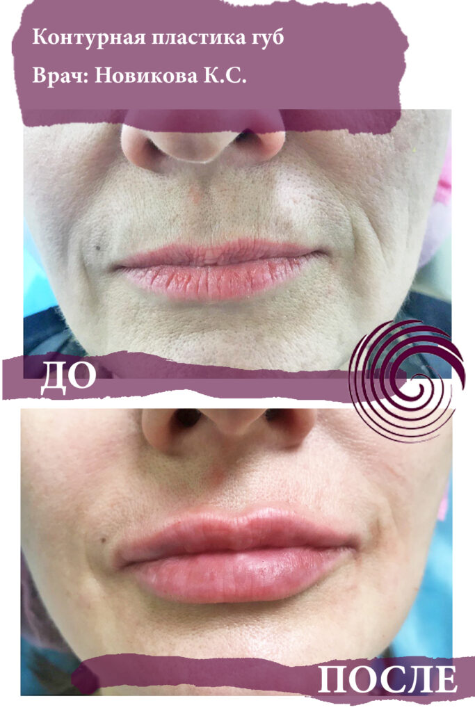 fillery guby 15 683x1024 - Увеличение губ