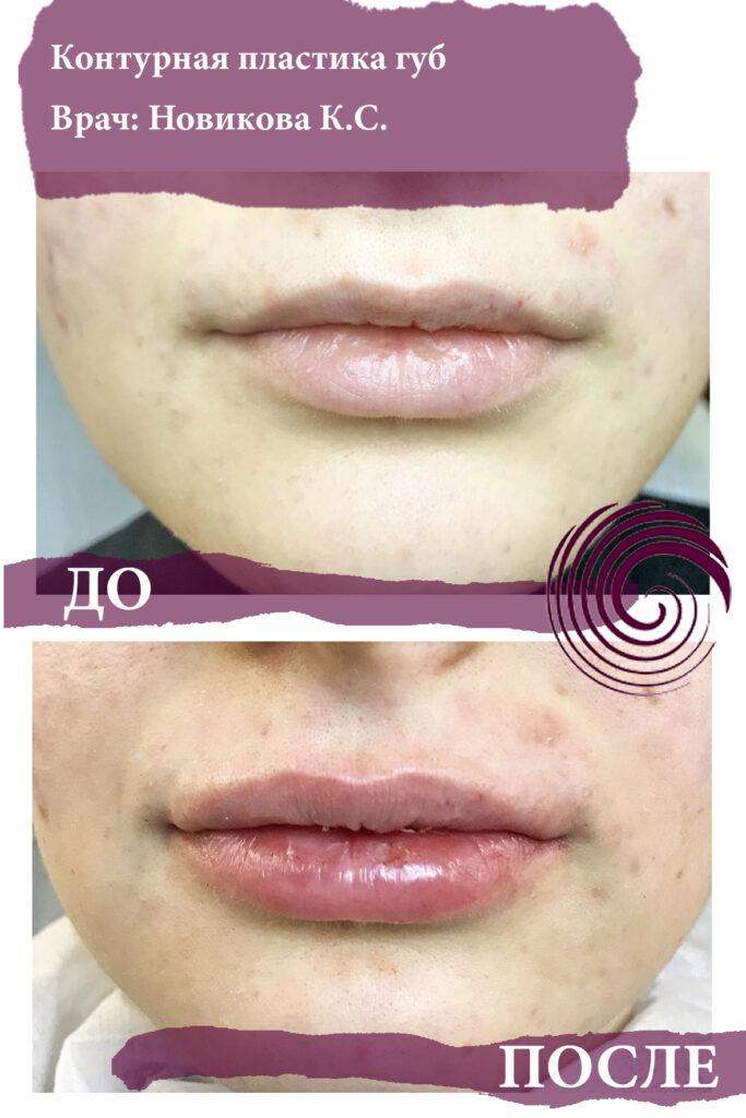 fillery guby 16 683x1024 - Увеличение губ