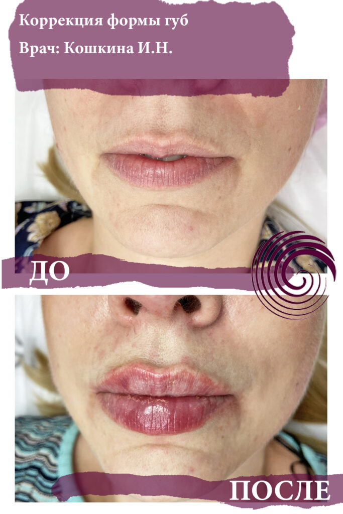 fillery guby 17 683x1024 - Увеличение губ