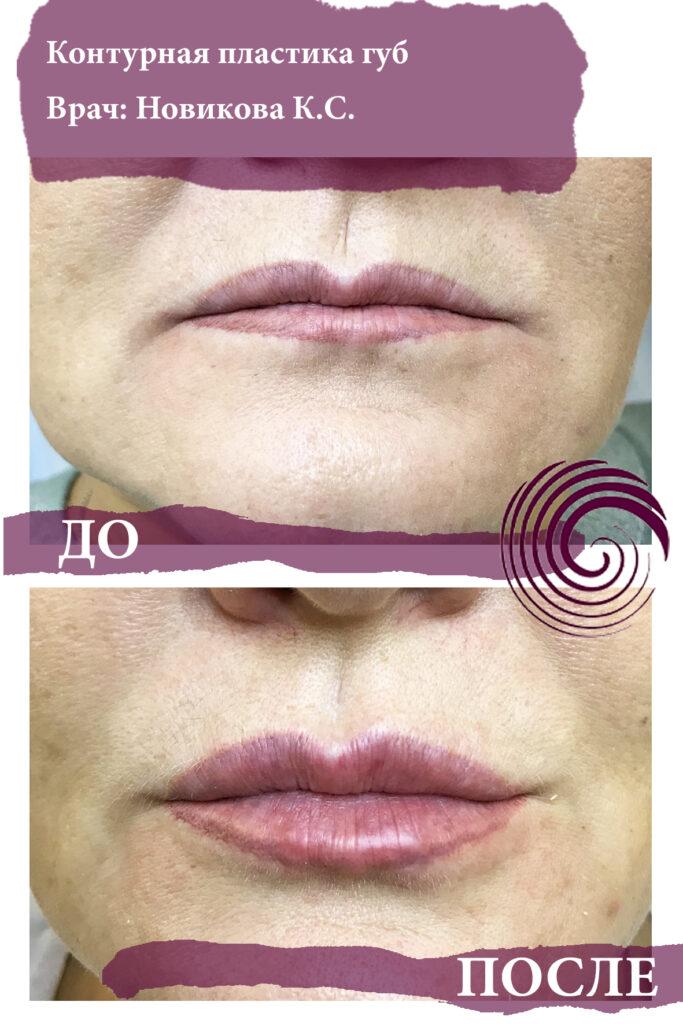 fillery guby 18 683x1024 - Увеличение губ