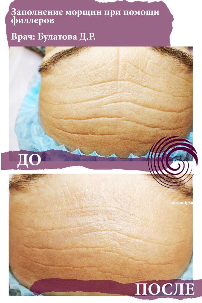 fillery lob 3 683x1024 - Комплексный подход в  борьбе с возрастными изменениями