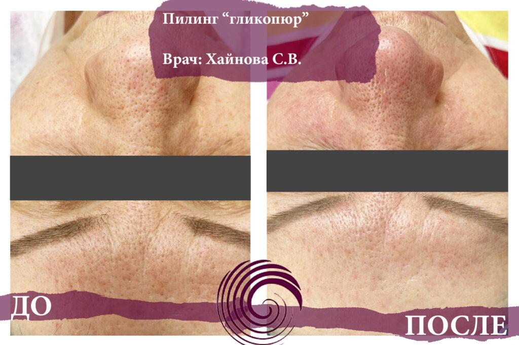glikopyur 5 1024x682 - Пилинг лица