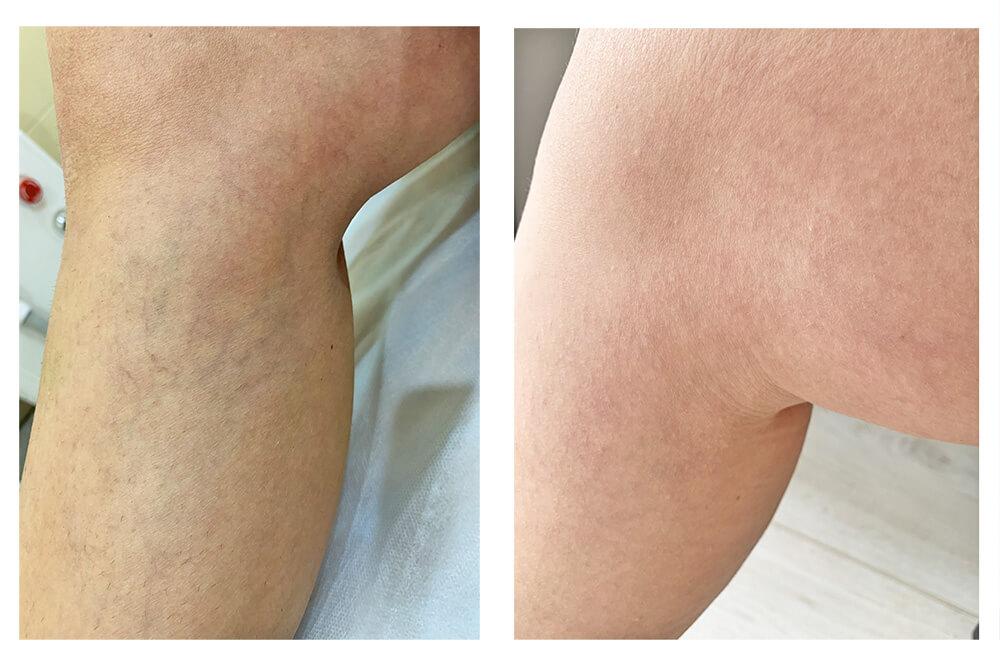kapilyarnye setki na nogah 2 - Удаление капиллярной сетки на ногах