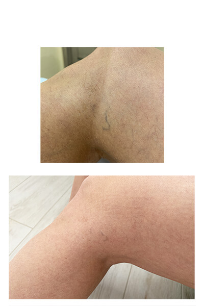 kapilyarnye setki na nogah 3 - Удаление капиллярной сетки на ногах