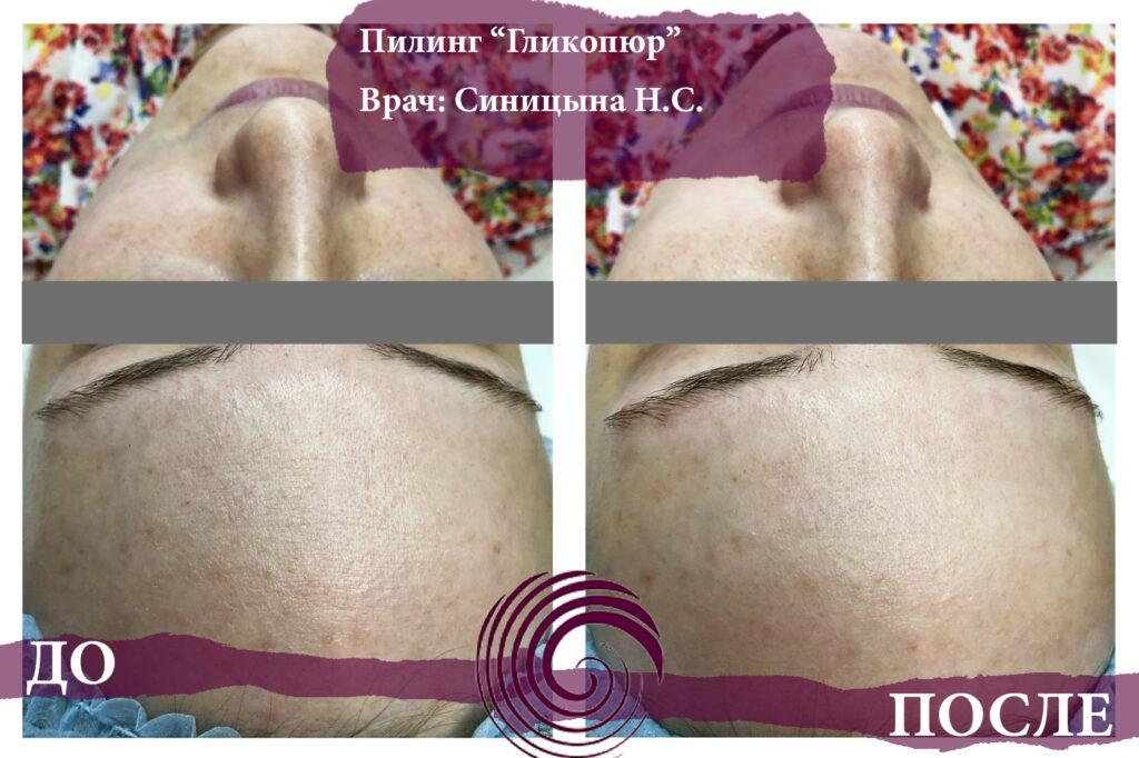 glikopyur 2 1024x682 - Лечение акне