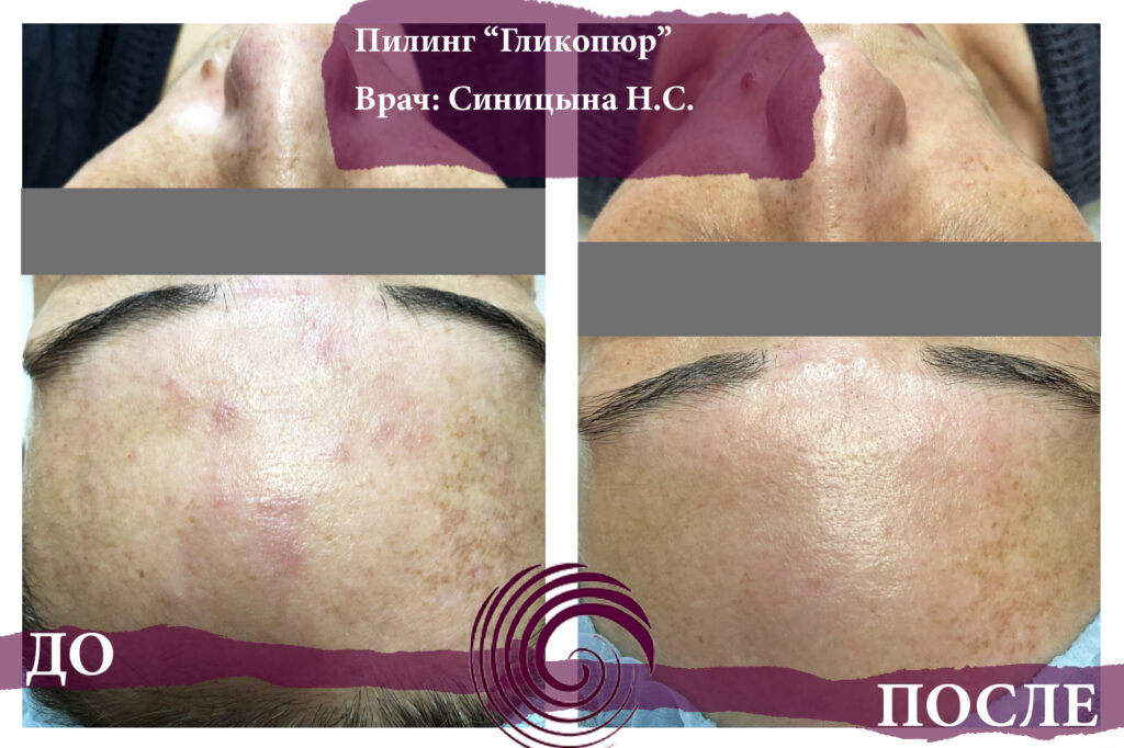 glikopyur 3 1024x682 - Лечение акне