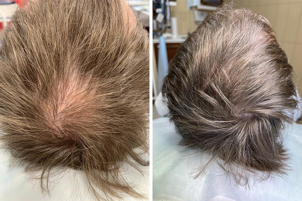rehair 1 - ReHair: лечение волос и кожи головы