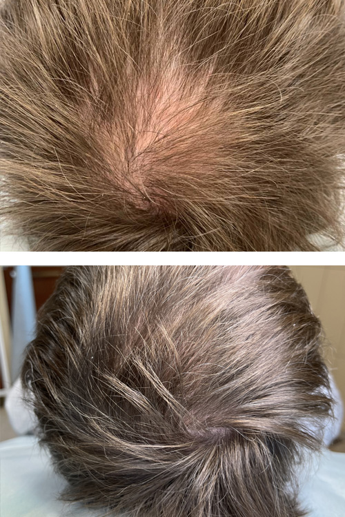 rehair cover - ReHair: лечение волос и кожи головы